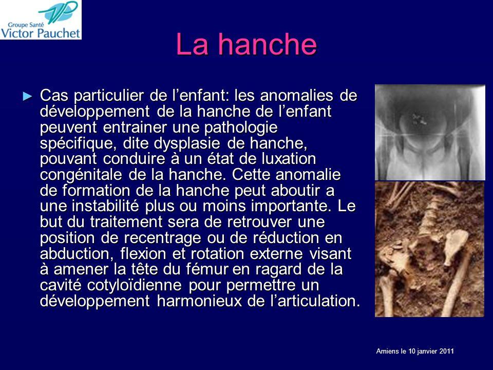La hanche Cas particulier de lenfant: les anomalies de développement de la hanche de lenfant peuvent entrainer une pathologie spécifique, dite dysplasie de hanche, pouvant conduire à un état de luxation congénitale de la hanche.
