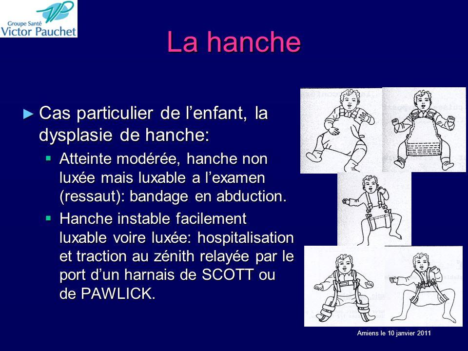 La hanche Cas particulier de lenfant, la dysplasie de hanche: Cas particulier de lenfant, la dysplasie de hanche: Atteinte modérée, hanche non luxée mais luxable a lexamen (ressaut): bandage en abduction.