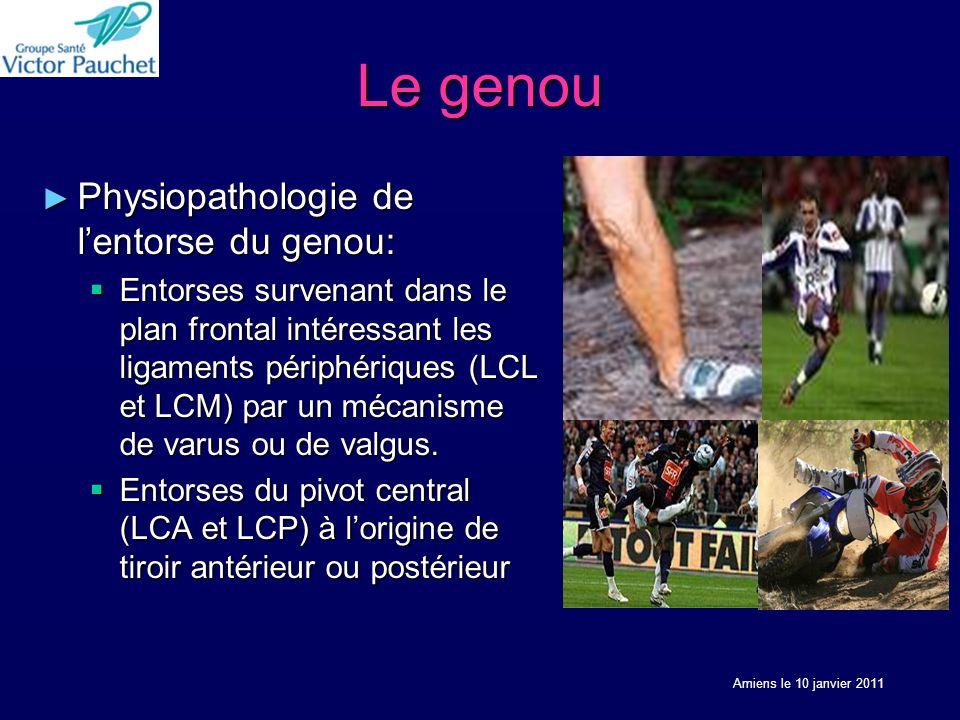 Le genou Physiopathologie de lentorse du genou: Physiopathologie de lentorse du genou: Entorses survenant dans le plan frontal intéressant les ligaments périphériques (LCL et LCM) par un mécanisme de varus ou de valgus.