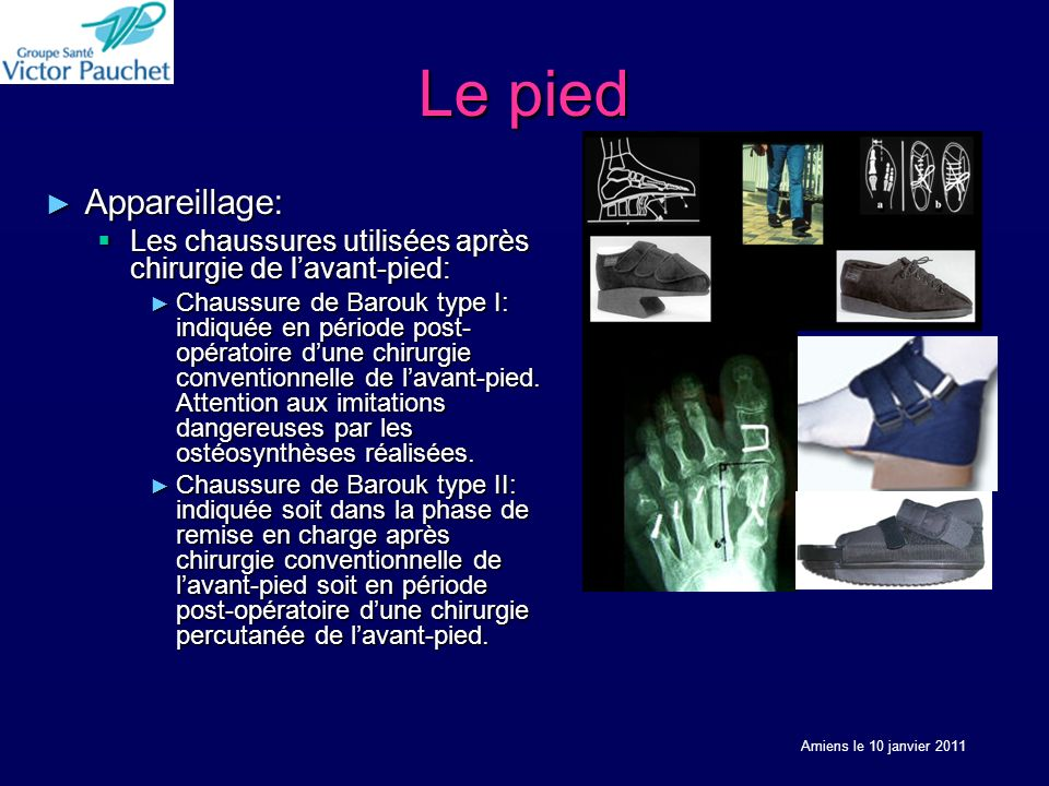 Le pied Appareillage: Appareillage: Les chaussures utilisées après chirurgie de lavant-pied: Les chaussures utilisées après chirurgie de lavant-pied: Chaussure de Barouk type I: indiquée en période post- opératoire dune chirurgie conventionnelle de lavant-pied.