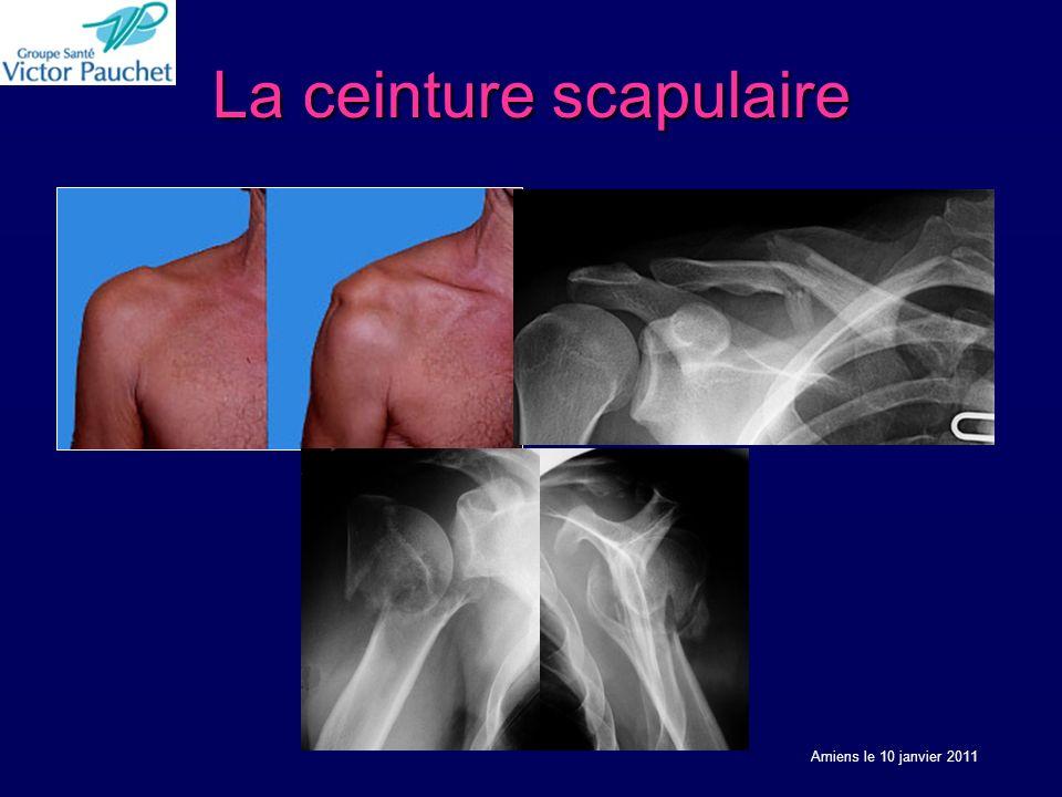 La ceinture scapulaire Amiens le 10 janvier 2011