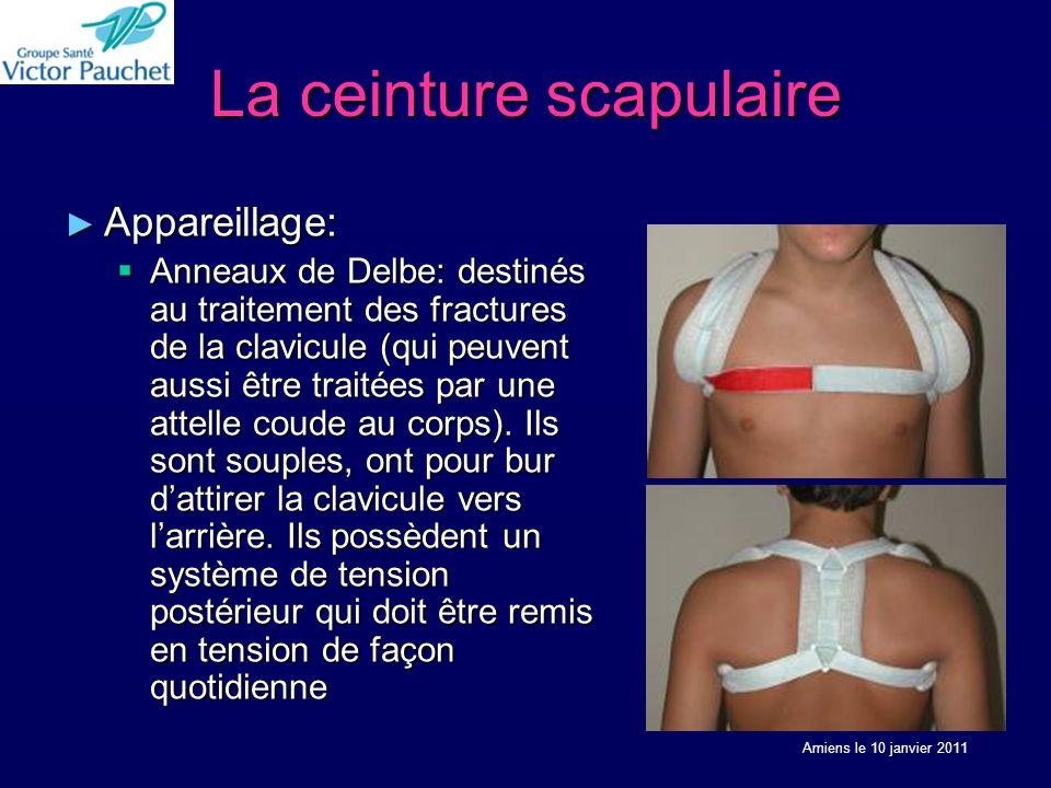 La ceinture scapulaire Appareillage: Appareillage: Anneaux de Delbe: destinés au traitement des fractures de la clavicule (qui peuvent aussi être traitées par une attelle coude au corps).
