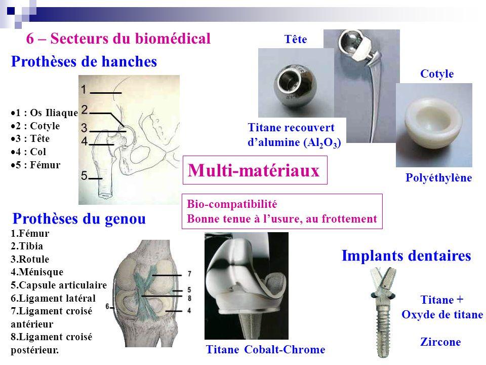 6 – Secteurs du biomédical 1 : Os Iliaque 2 : Cotyle 3 : Tête 4 : Col 5 : Fémur Prothèses de hanches Prothèses du genou Implants dentaires Tête Cotyle
