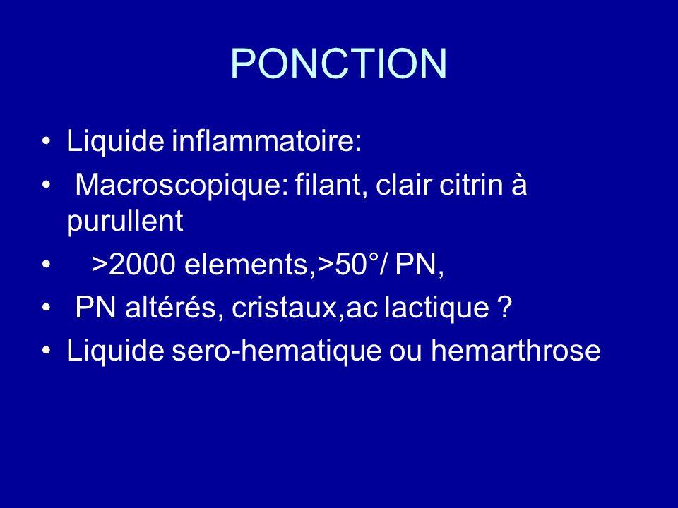 PONCTION Liquide inflammatoire: Macroscopique: filant, clair citrin à purullent >2000 elements,>50°/ PN, PN altérés, cristaux,ac lactique ? Liquide se