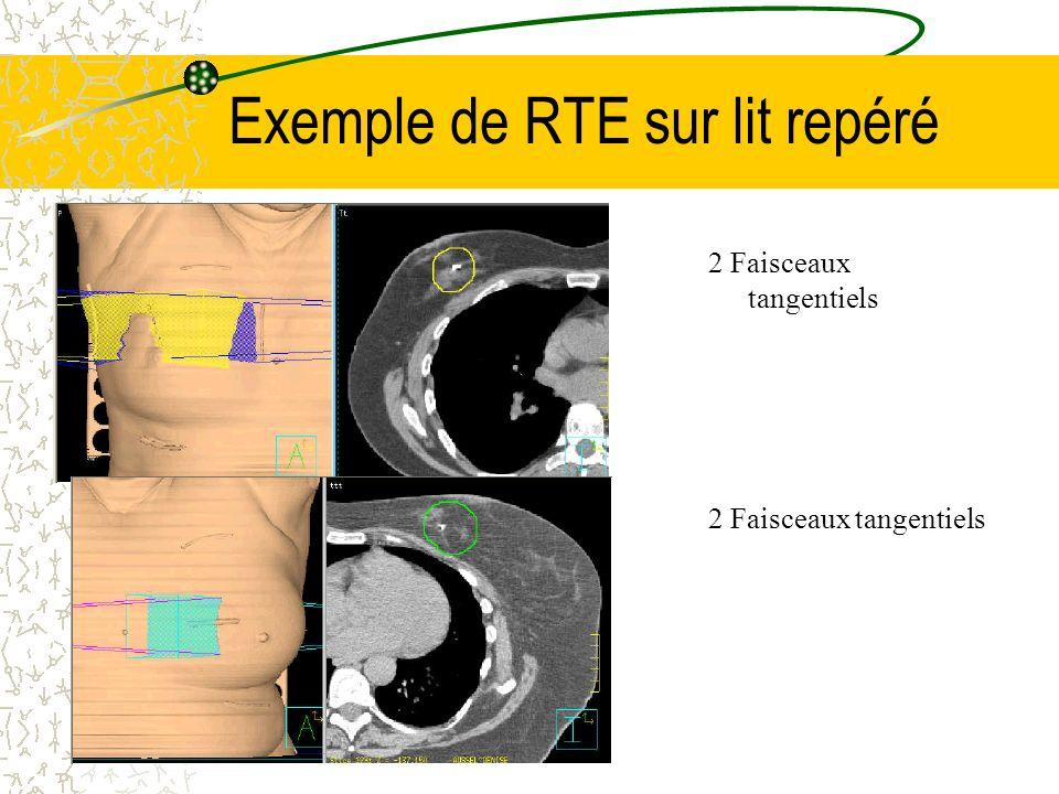 Exemple de RTE sur lit repéré 2 Faisceaux tangentiels