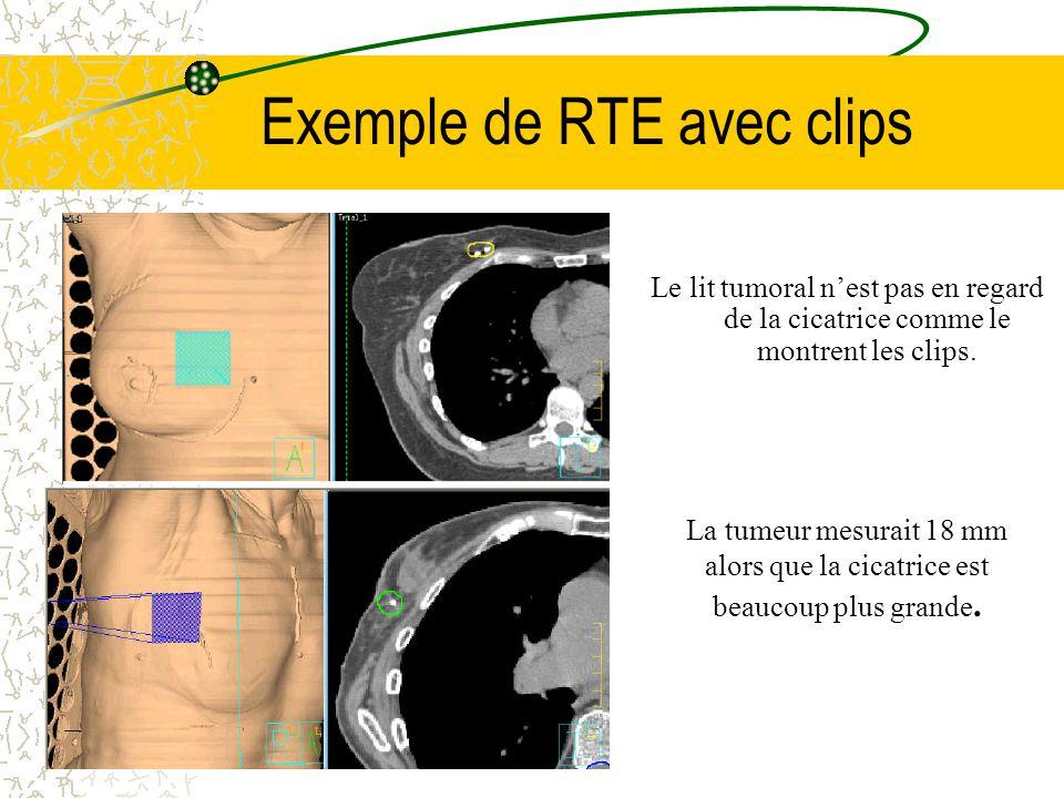 Exemple de RTE avec clips La tumeur mesurait 18 mm alors que la cicatrice est beaucoup plus grande. Le lit tumoral nest pas en regard de la cicatrice