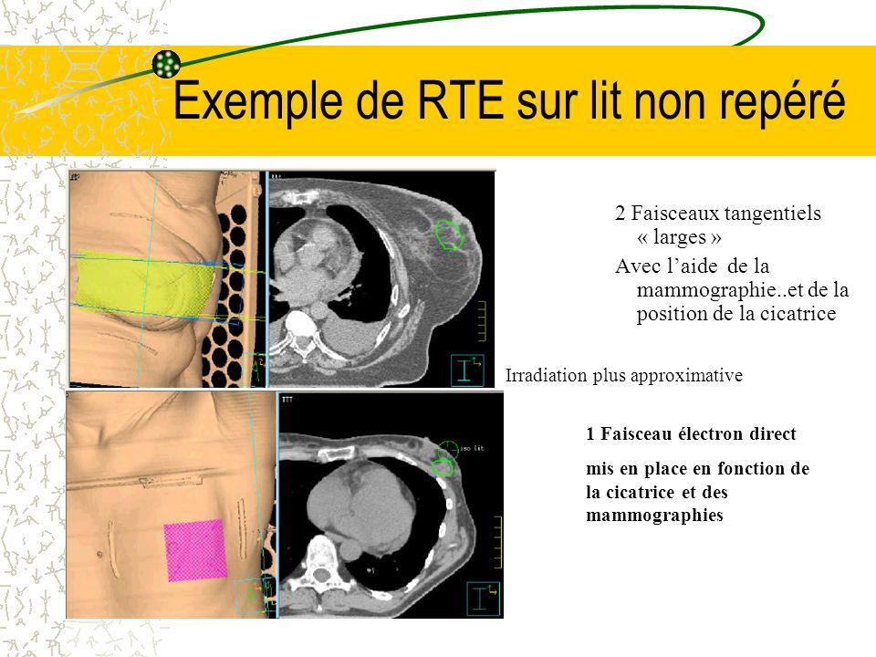 Exemple de RTE sur lit non repéré 2 Faisceaux tangentiels « larges » Avec laide de la mammographie..et de la position de la cicatrice 1 Faisceau élect