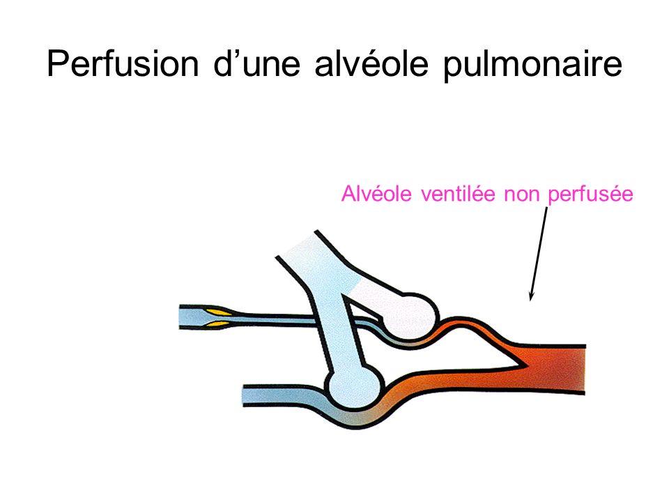 Perfusion dune alvéole pulmonaire Alvéole ventilée non perfusée