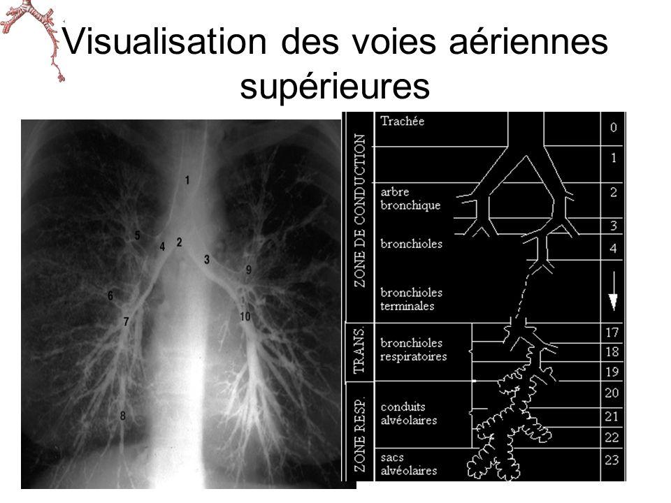 Visualisation des voies aériennes supérieures Voies aériennes inférieures