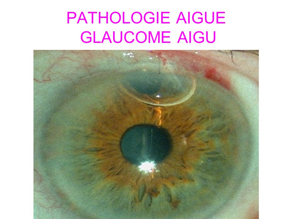 PATHOLOGIE AIGUE GLAUCOME AIGU