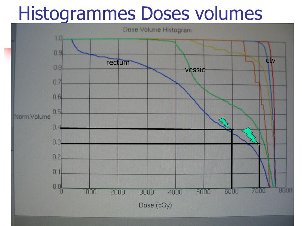 Histogrammes Doses volumes rectum vessie ctv