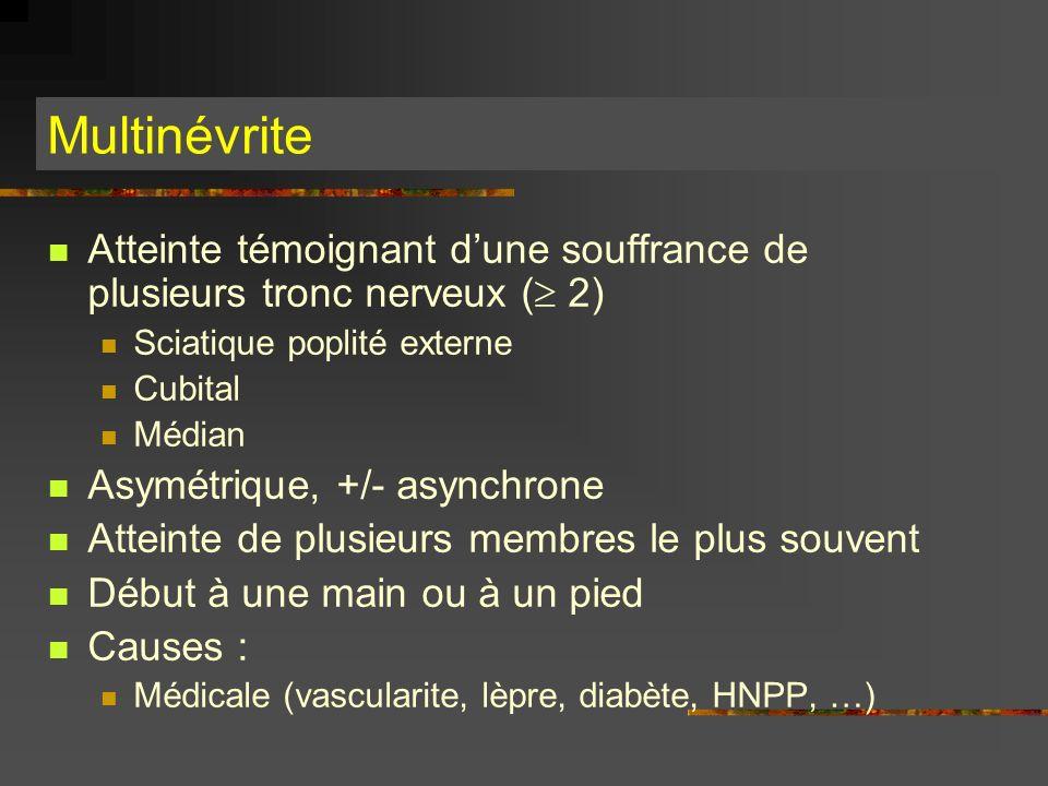 Atteinte témoignant dune souffrance de plusieurs tronc nerveux ( 2) Sciatique poplité externe Cubital Médian Asymétrique, +/- asynchrone Atteinte de p