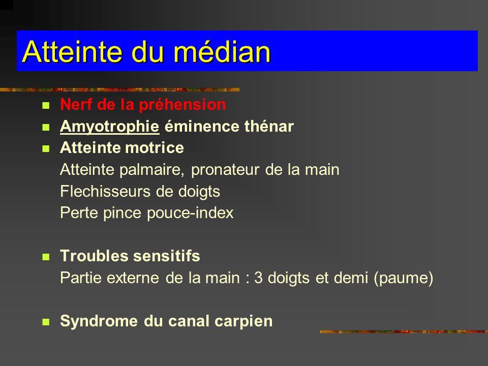 Atteinte du médian Nerf de la préhension Amyotrophie éminence thénar Atteinte motrice Atteinte palmaire, pronateur de la main Flechisseurs de doigts P
