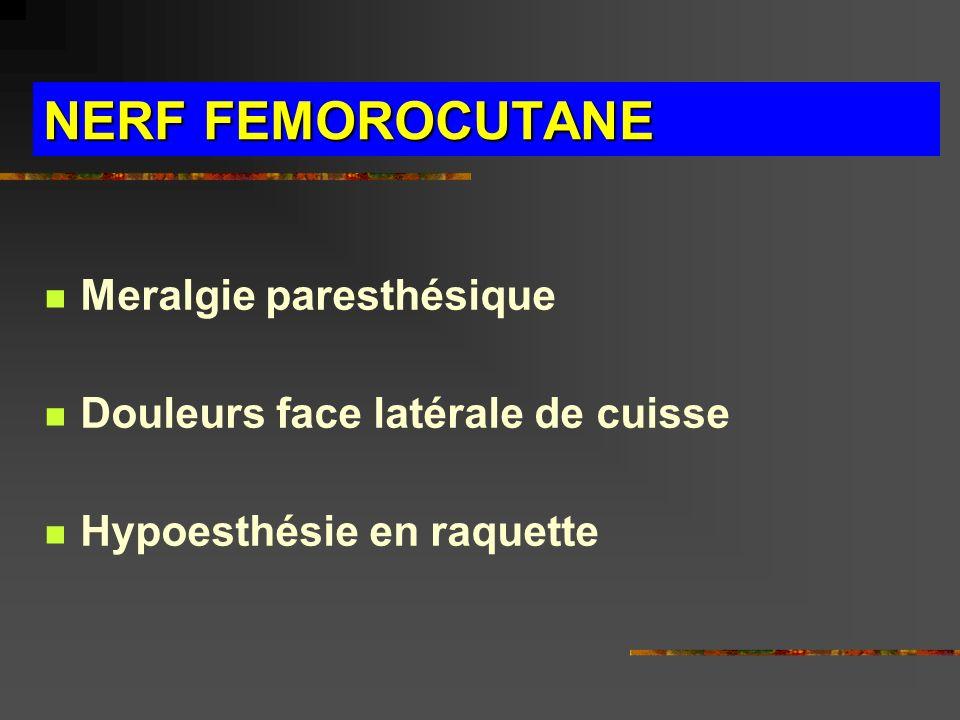 NERF FEMOROCUTANE Meralgie paresthésique Douleurs face latérale de cuisse Hypoesthésie en raquette