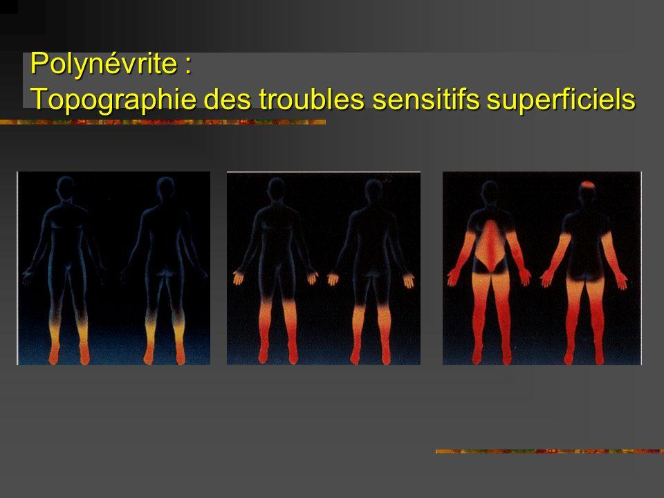 Troubles végétatifs (1) Au cours des polyneuropathies avec atteinte des petites fibres 1) le diabète 2) lamylose Troubles digestifs cardiovasculaires génitosphinctériens sudoraux modifications pupillaires