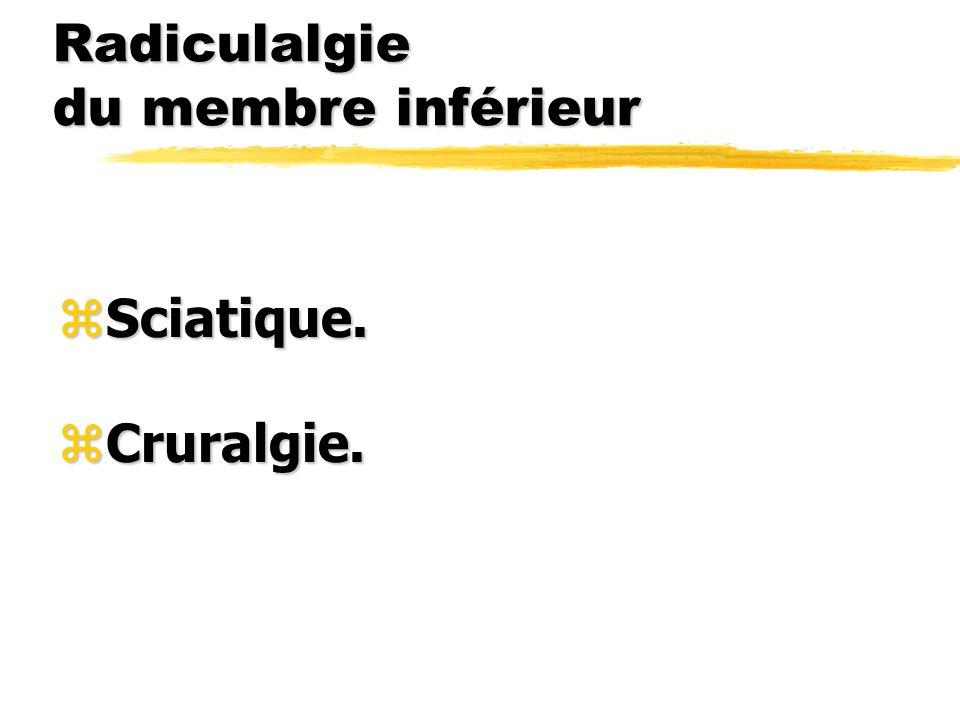 Radiculalgie du membre inférieur zSciatique. zCruralgie.