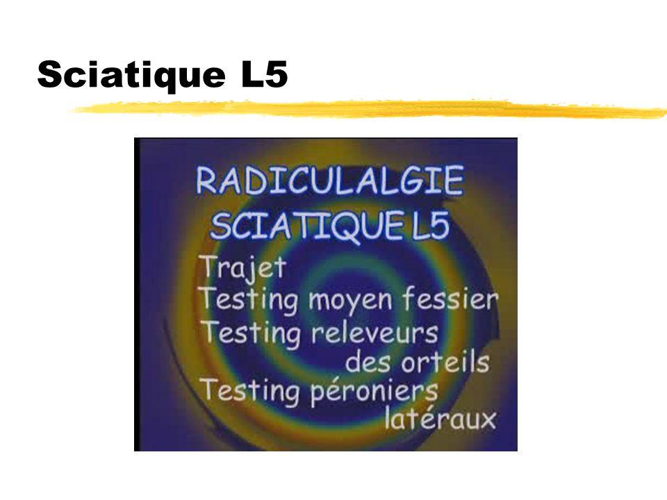 Sciatique L5