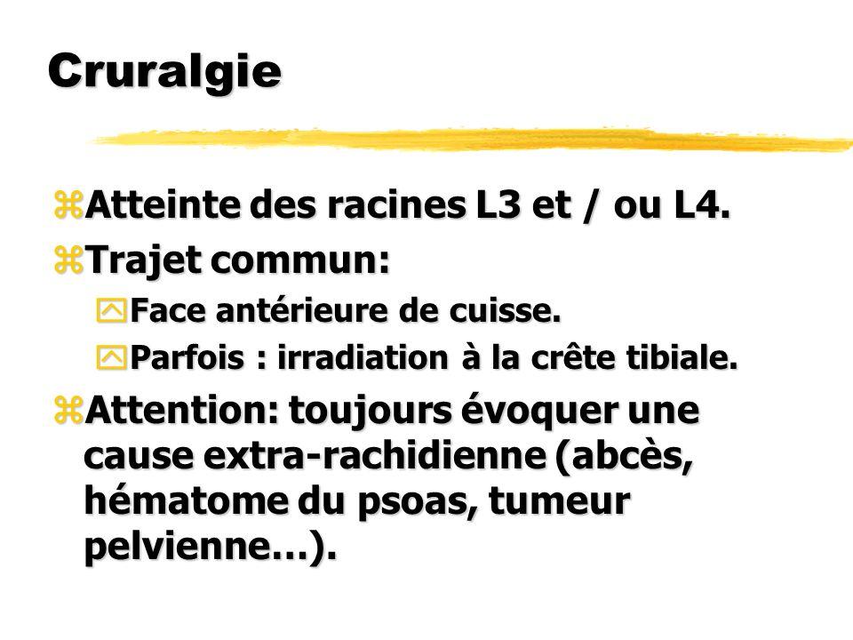 Cruralgie zAtteinte des racines L3 et / ou L4. zTrajet commun: yFace antérieure de cuisse. yParfois : irradiation à la crête tibiale. zAttention: touj