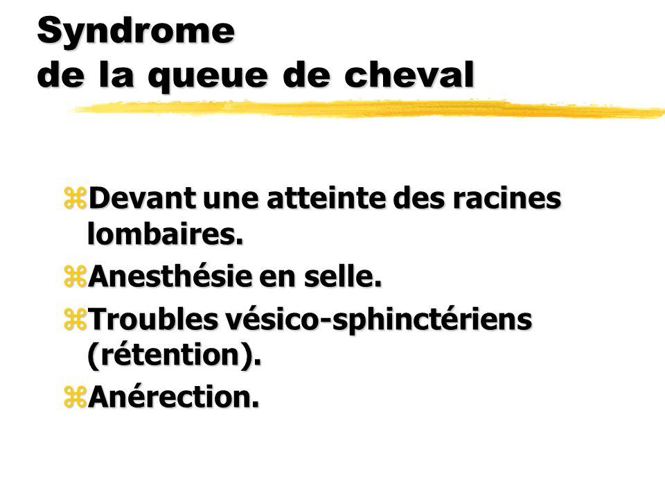 Syndrome de la queue de cheval zDevant une atteinte des racines lombaires. zAnesthésie en selle. zTroubles vésico-sphinctériens (rétention). zAnérecti
