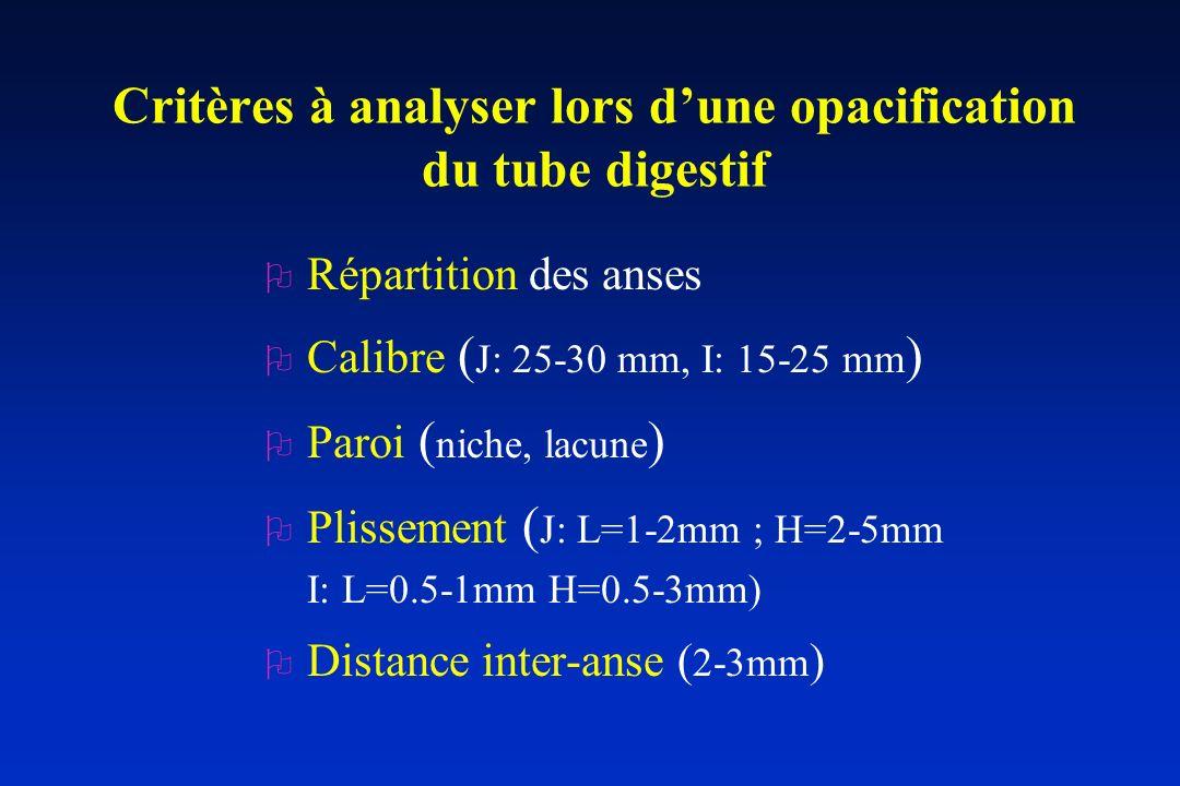 Critères à analyser lors dune opacification du tube digestif O Répartition des anses O Calibre ( J: 25-30 mm, I: 15-25 mm ) O Paroi ( niche, lacune )