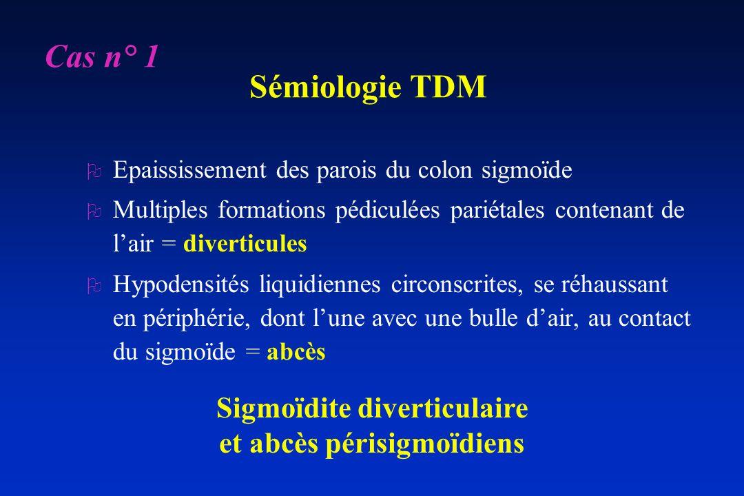 Sémiologie TDM O Epaississement des parois du colon sigmoïde O Multiples formations pédiculées pariétales contenant de lair = diverticules O Hypodensi
