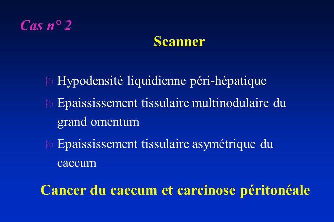 Scanner O Hypodensité liquidienne péri-hépatique O Epaississement tissulaire multinodulaire du grand omentum O Epaississement tissulaire asymétrique d