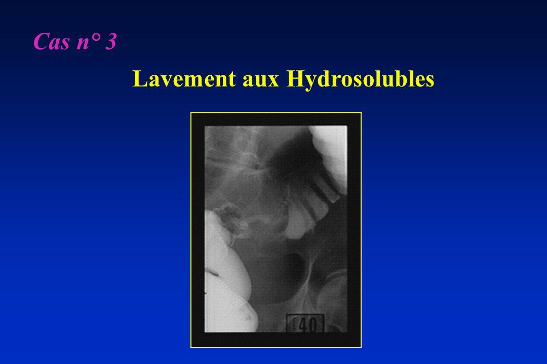 Cas n° 3 Lavement aux Hydrosolubles