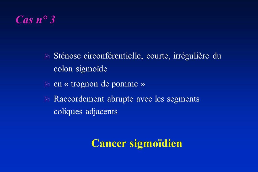 O Sténose circonférentielle, courte, irrégulière du colon sigmoïde O en « trognon de pomme » O Raccordement abrupte avec les segments coliques adjacen