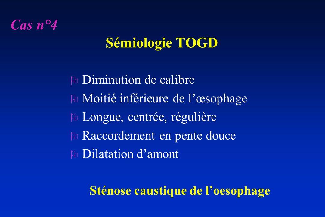 Sémiologie TOGD O Diminution de calibre O Moitié inférieure de lœsophage O Longue, centrée, régulière O Raccordement en pente douce O Dilatation damon