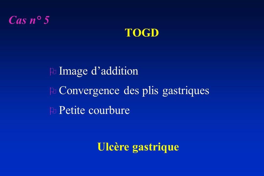 TOGD O Image daddition O Convergence des plis gastriques O Petite courbure Ulcère gastrique Cas n° 5