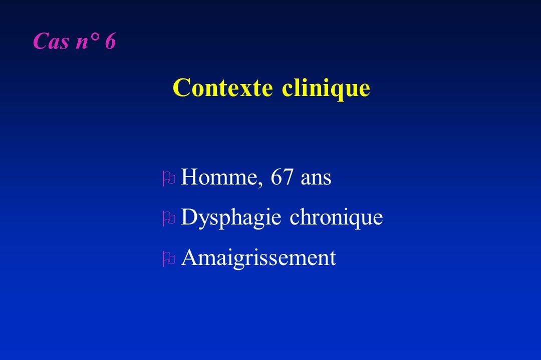 Contexte clinique O Homme, 67 ans O Dysphagie chronique O Amaigrissement Cas n° 6