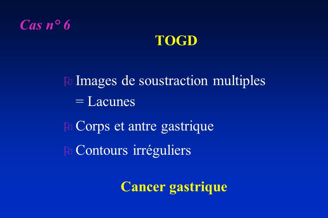 TOGD O Images de soustraction multiples = Lacunes O Corps et antre gastrique O Contours irréguliers Cancer gastrique Cas n° 6