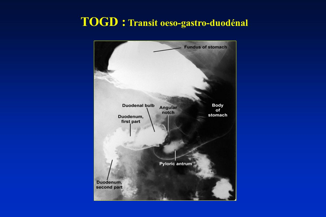 TOGD : Transit oeso-gastro-duodénal