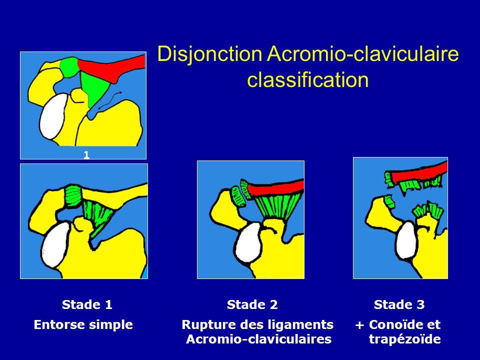 Disjonction Acromio-claviculaire classification Stade 1 Stade 2 Stade 3 Entorse simple Rupture des ligaments + Conoïde et Acromio-claviculaires trapéz