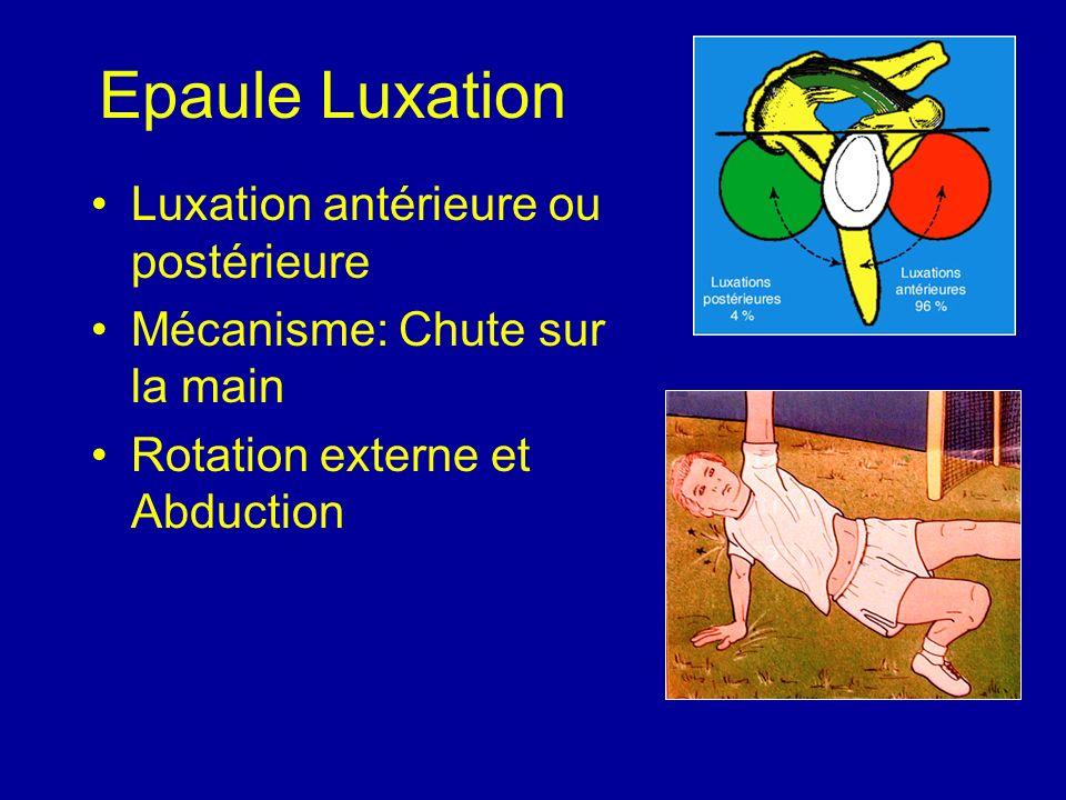 Epaule Luxation Luxation antérieure ou postérieure Mécanisme: Chute sur la main Rotation externe et Abduction