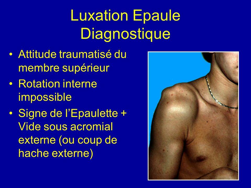 Luxation Epaule Diagnostique Attitude traumatisé du membre supérieur Rotation interne impossible Signe de lEpaulette + Vide sous acromial externe (ou
