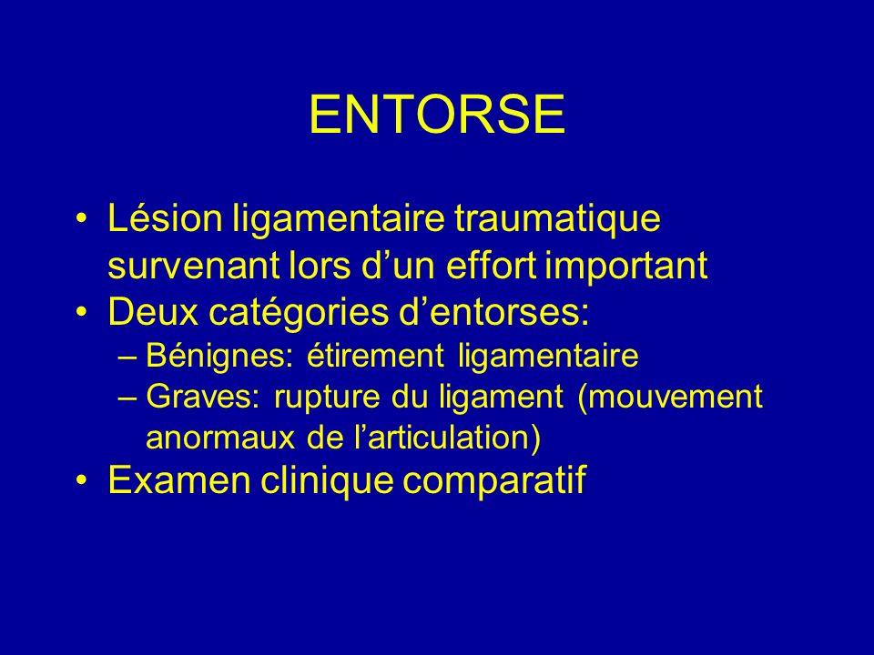 ENTORSE Lésion ligamentaire traumatique survenant lors dun effort important Deux catégories dentorses: –Bénignes: étirement ligamentaire –Graves: rupt