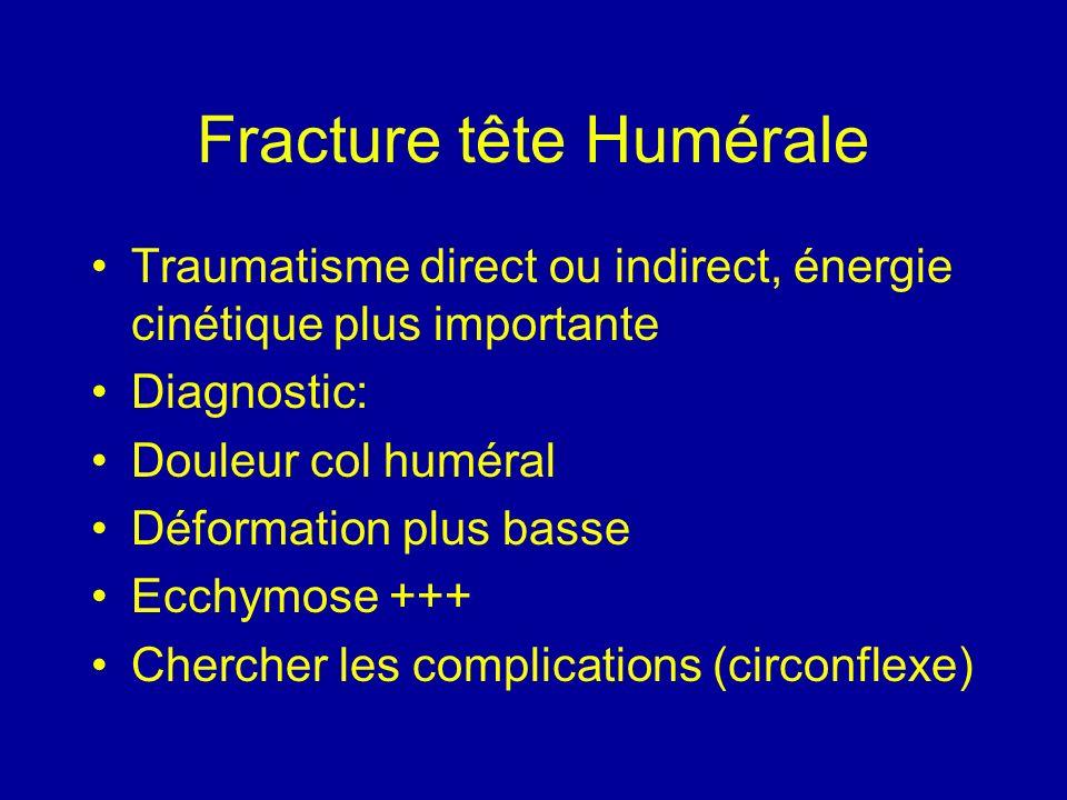 Fracture tête Humérale Traumatisme direct ou indirect, énergie cinétique plus importante Diagnostic: Douleur col huméral Déformation plus basse Ecchym