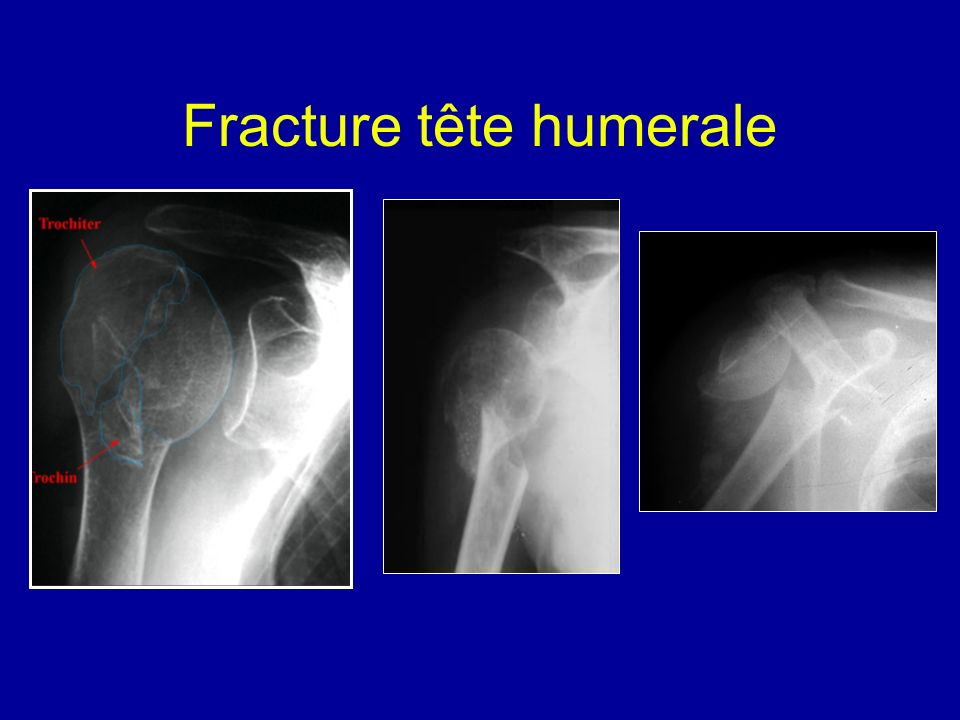 Fracture tête humerale