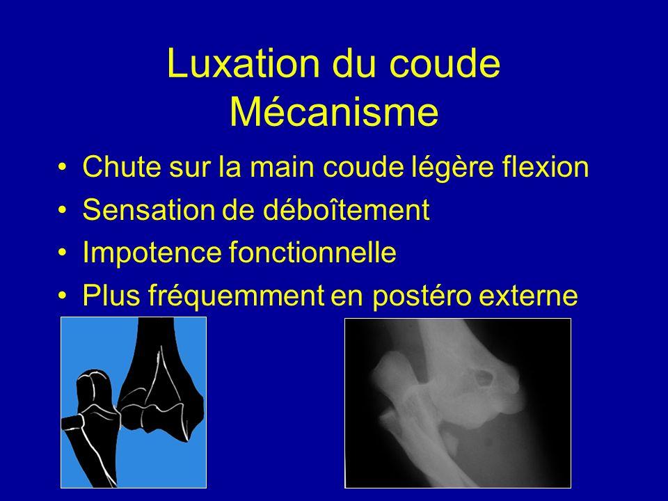 Luxation du coude Mécanisme Chute sur la main coude légère flexion Sensation de déboîtement Impotence fonctionnelle Plus fréquemment en postéro extern