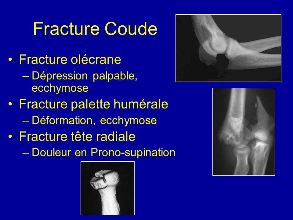 Fracture Coude Fracture olécrane –Dépression palpable, ecchymose Fracture palette humérale –Déformation, ecchymose Fracture tête radiale –Douleur en P