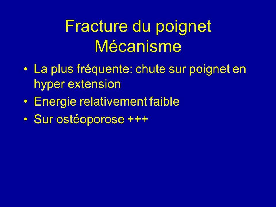 Fracture du poignet Mécanisme La plus fréquente: chute sur poignet en hyper extension Energie relativement faible Sur ostéoporose +++