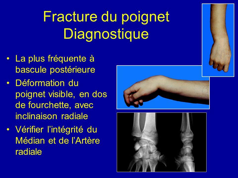 Fracture du poignet Diagnostique La plus fréquente à bascule postérieure Déformation du poignet visible, en dos de fourchette, avec inclinaison radial