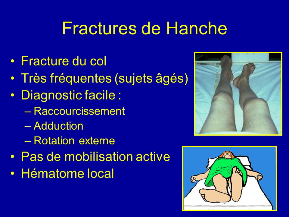 Fractures de Hanche Fracture du col Très fréquentes (sujets âgés) Diagnostic facile : –Raccourcissement –Adduction –Rotation externe Pas de mobilisation active Hématome local