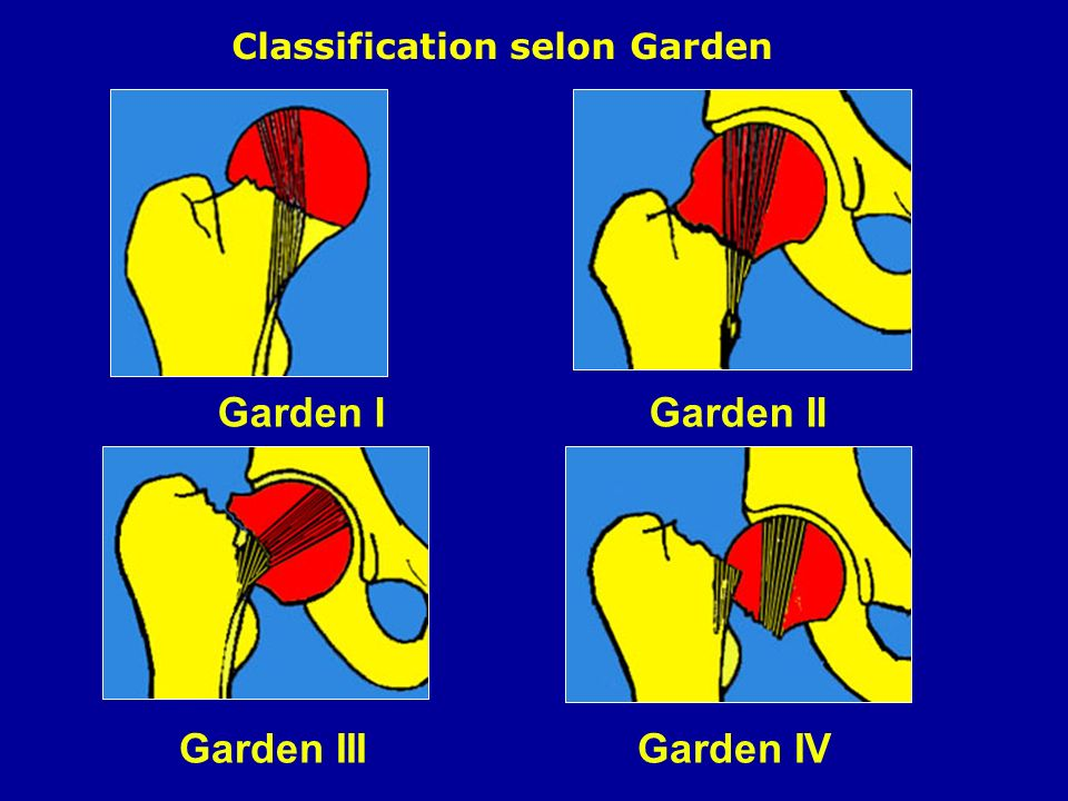 Garden I Garden II Garden III Garden IV Classification selon Garden