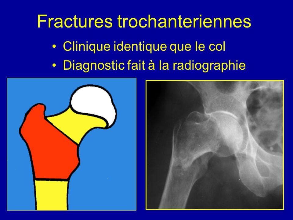 Fractures trochanteriennes Clinique identique que le col Diagnostic fait à la radiographie