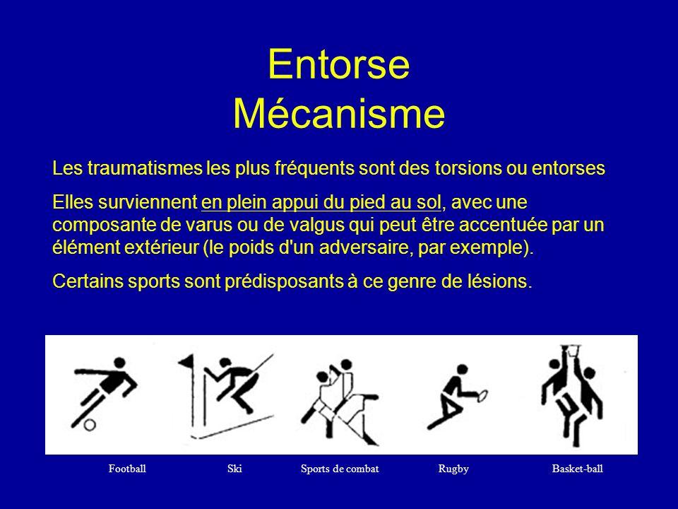 Entorse Mécanisme Football Ski Sports de combat Rugby Basket-ball Les traumatismes les plus fréquents sont des torsions ou entorses Elles surviennent