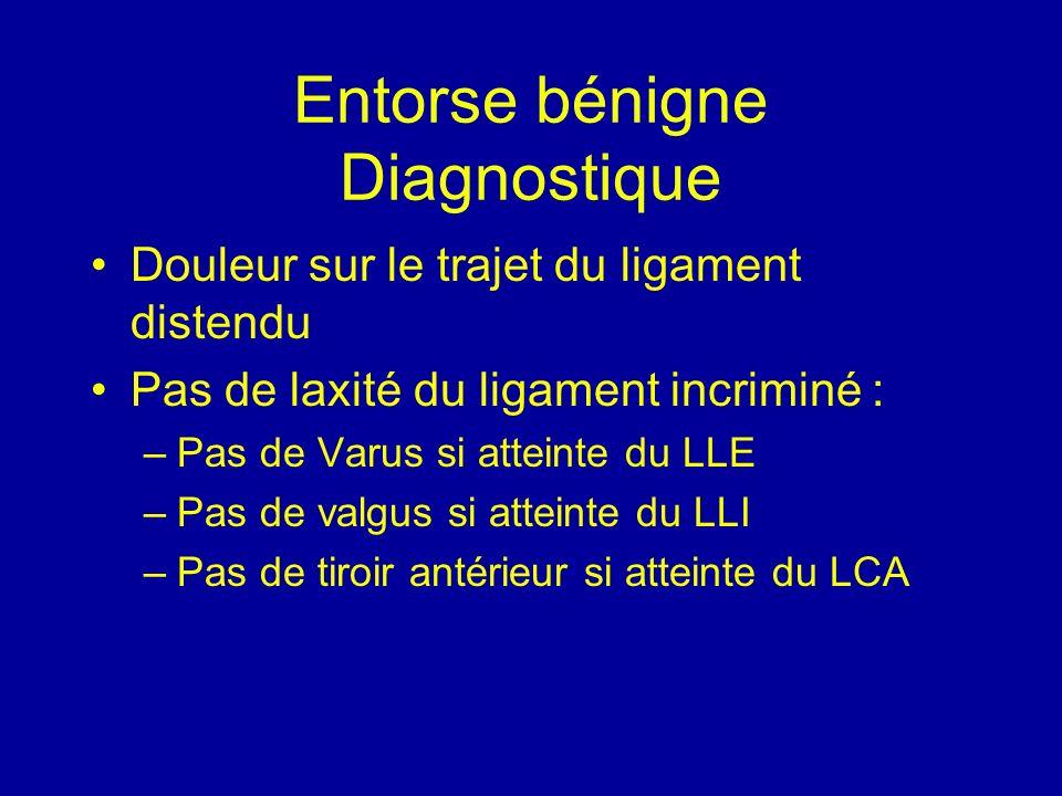 Entorse bénigne Diagnostique Douleur sur le trajet du ligament distendu Pas de laxité du ligament incriminé : –Pas de Varus si atteinte du LLE –Pas de