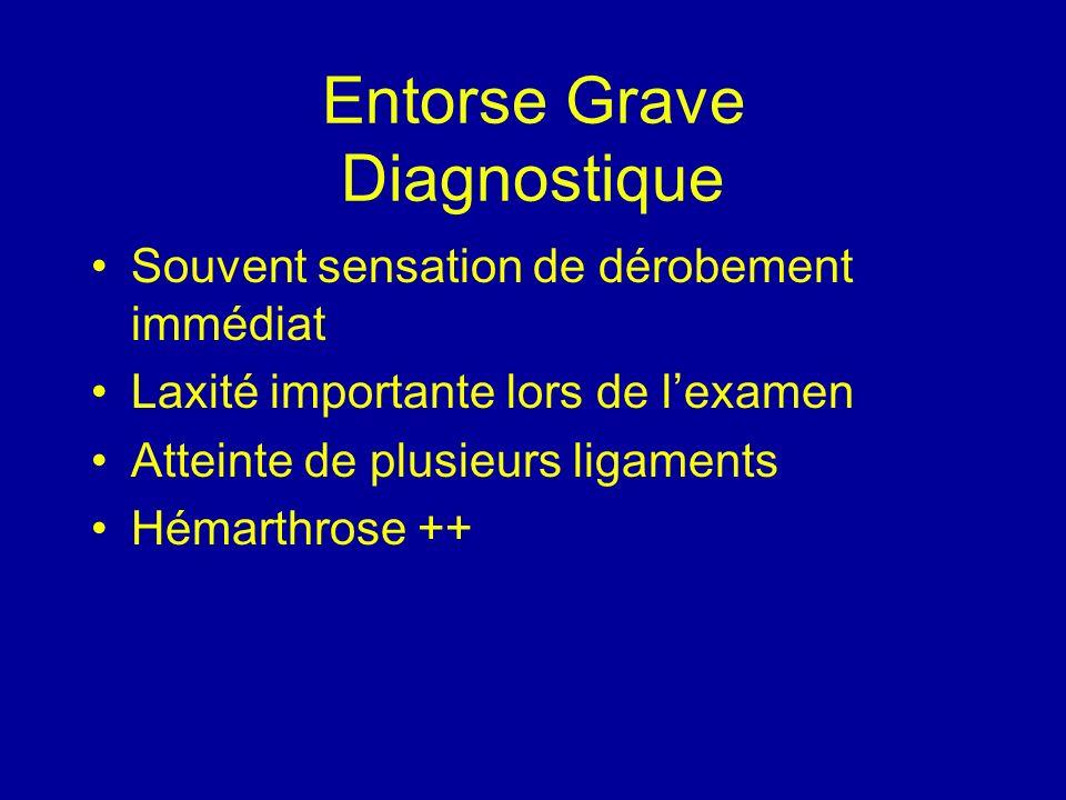 Entorse Grave Diagnostique Souvent sensation de dérobement immédiat Laxité importante lors de lexamen Atteinte de plusieurs ligaments Hémarthrose ++