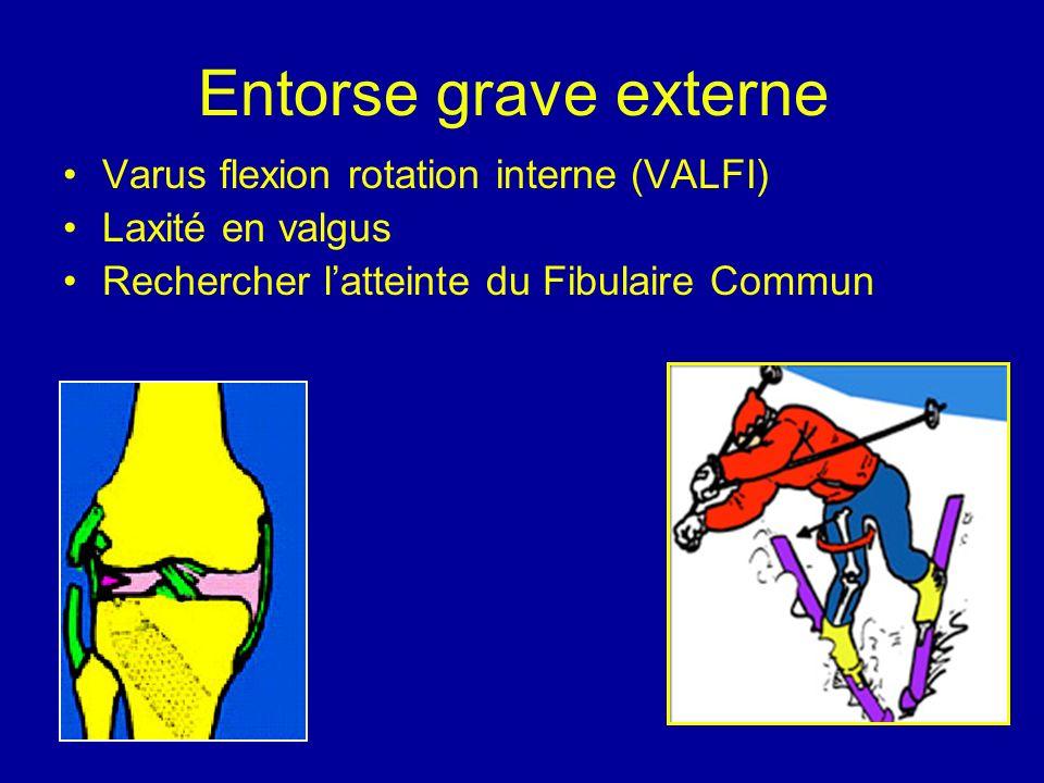 Entorse grave externe Varus flexion rotation interne (VALFI) Laxité en valgus Rechercher latteinte du Fibulaire Commun